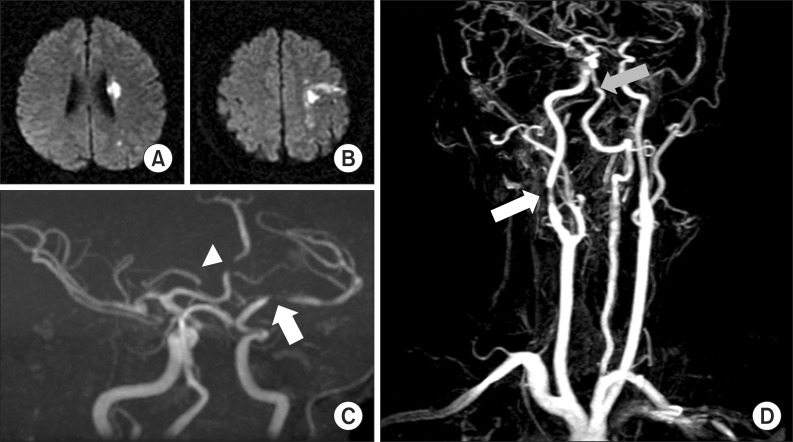 A B The T2 weighted brain magnetic resonance imaging scan revealed ischemia in left