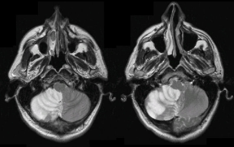 Nhồi máu tiểu não phải ổ lớn