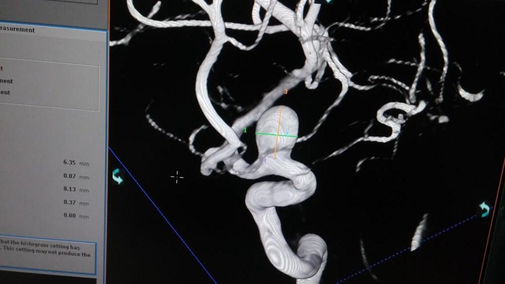 Phình ĐM não trên DSA 3 D