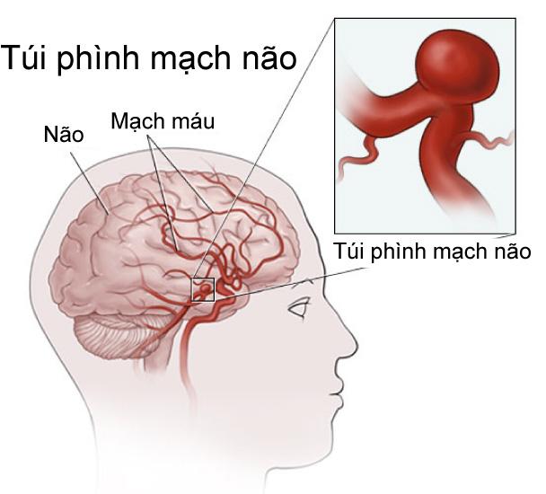 Phình ĐM não