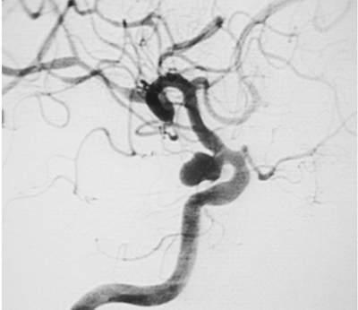 Phình động mạch não trên DSA 1