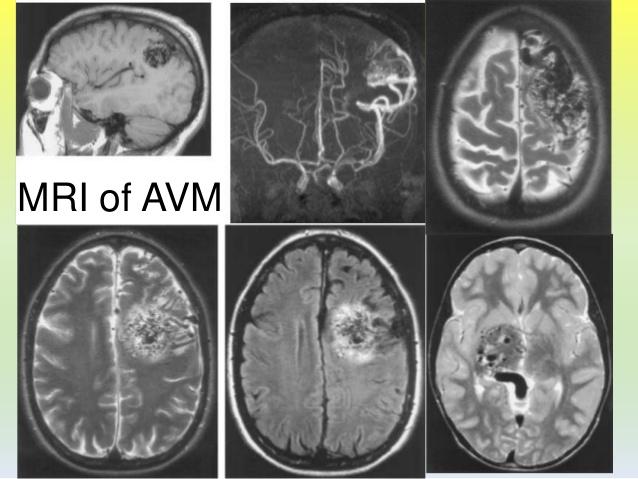 arteriovenous malformation avm of brain 13 638
