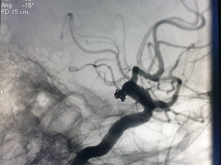 Nút Coils phình mạch