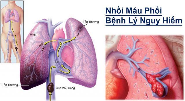 Nhồi máu phổi